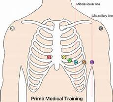 Ecg Placement Chart The Ultimate 12 Lead Ecg Placement Guide With Illustrations