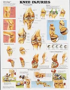 Back Diagnosis Chart Knee Injuries Chart