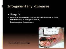 Integumentary System Diseases Ppt Selected Integumentary System Diseases Amp Conditions