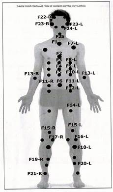 Hijama Cupping Points Chart Cupping Points Things For My Wall Pinterest Therapy