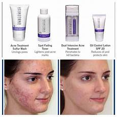unblemish before and after results amazing https