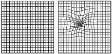 Amd Eye Chart Macular Degeneration Abdo