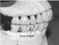 Curve Of Spee Orthognathic Surgery Part I Terminology And Surgical