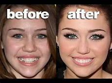 miley cyrus teeth before and after tooth surgery
