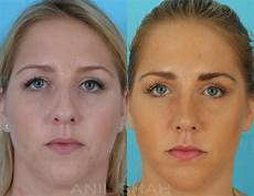 rhinoplasty pictures chicago il patient 470