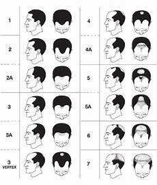 Norwood Classification Understanding Pattern Baldness