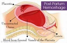 Postpartum Hemorrhage Postpartum Hemorrhage The Postpartum Experience I Wasn T