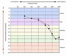 Hearing Loss Frequency Chart What Would Be The Hearing Loss Db In A Person With 40