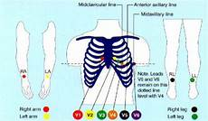 Ecg Placement Chart Ekg Placement Gallery