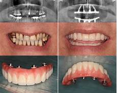 All On 4 All On 4 174 Implants Welcome To Fraser Dental Healthcare