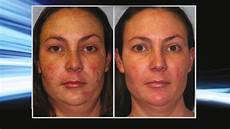 bbl hydrafacial before after