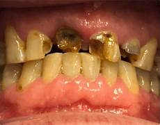 Dental Caries Terms D L Health Care A Whole New Language