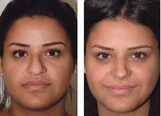 rhinoplasty before and after nose before and after