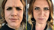 before and after of my botox experience modern day