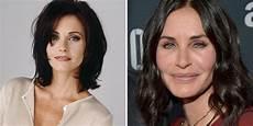 actors who regret getting plastic surgery screen rant