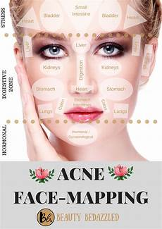 Chinese Acne Face Chart Acne Face Mapping What Does Your Acne Tell You Beauty