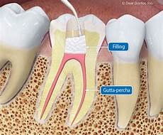 Root Canal Filling Material Root Canal Treatment What You Need To Know