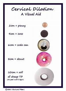 Centimeters Dilated Chart Cervical Dilation And Effacement On Pinterest Labor