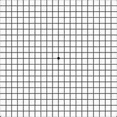 Amd Eye Chart Amsler Grid Printable Google Search Macular Disease