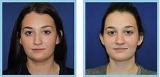 liposuction chin neck nashville liposuction