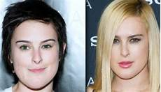 rumer willis plastic surgery before and after photos