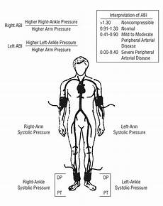 Arm Diagnosis Chart Peripheral Arterial Disease Identification And