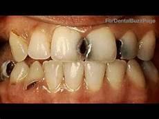 Dental Caries G V Black S Classification Of Dental Caries Youtube