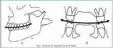 Curve Of Spee Curve Of Spee Ortodoncia Odontolog 237 A Salud Dental