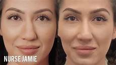 before and after non surgical nose