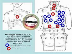 Hijama Cupping Points Chart Overweight Need Cupping Done Cup Red Points Plus