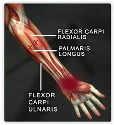 Fcr Tendon Flexor Carpi Radialis Tendon Things You Didn T Know