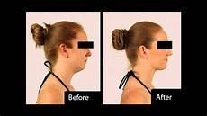 neckline slimmer before after results