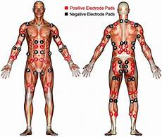 Electrode Placement For Electrical Stimulation Chart 15 Best Tens Electrode Images On Pinterest Fibromyalgia