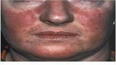 Polycythemia Rubra Vera Polycythemia Vera Symptoms Causes Diagnosis And
