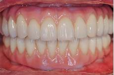 All On 4 All On 4 Zirconia Porcelain Teeth Centre For Aesthetic