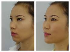 dermal fillers anti wrinkle treatmment before after