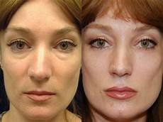 before and after tear trough fillers in 2019 tear trough