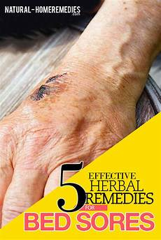bed sores herbal remedies treatments and cures