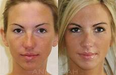 rhinoplasty pictures chicago il patient 481