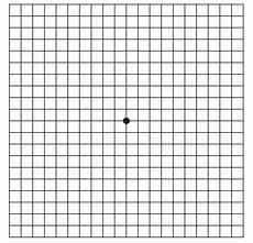 Amd Eye Chart 216 Yeforkalkning Amd