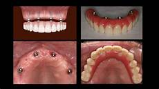 All On 4 All On 4 Dental Implants The Dental Guide