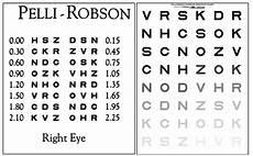 Contrast Sensitivity Chart Pdf Retinal Physician February 2018