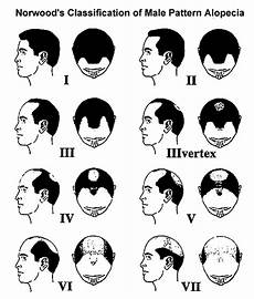 Types Of Pattern Baldness And Other Hair Loss In Men