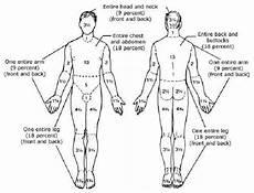 Burn Chart Body Burn Wounds Management Dr Reena S Blog