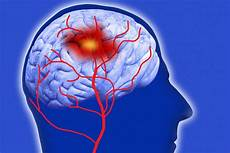 Stroke Induced Pain Is Called Dejerine Roussy Syndrome