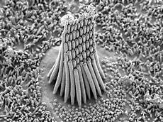 Hair Cells Noise Induced Hearing Loss Springfield Ma Ear Nose