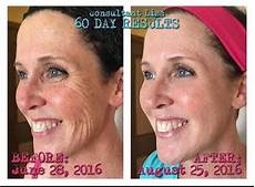 get rid of wrinkles bring back your youth rodan fields