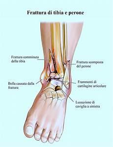 interno caviglia frattura perone scomposta intervento riabilitazione