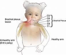 Erb Palsy Erb 226 S Palsy Physiotherapy Ridwan Sohail Mitha 4022