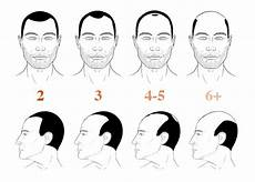 Norwood 2 Hairline 3 Ways To Stop It Naturally Before It